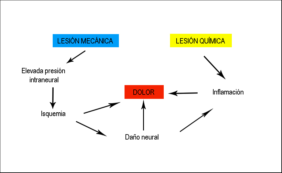 mecanismo dolor radiculopatía lumbar